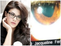 Bollywood Actress Jacqueline Fernandez Suffers Permanent Eye Injury